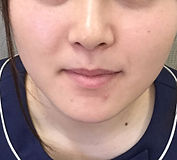顎after.jpg
