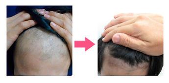 発毛治療の実際