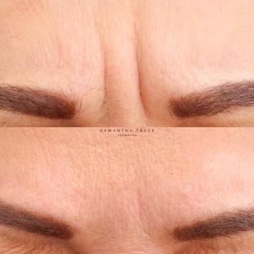 Botox 2 frown.jpg