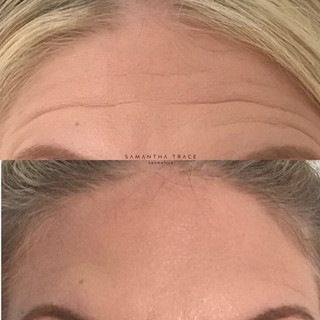 Botox forehead.jpg