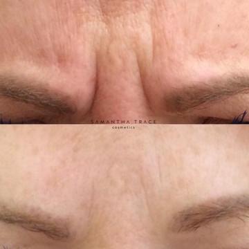 Botox frown.jpg