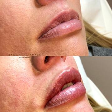 Lip fillers 3.jpg