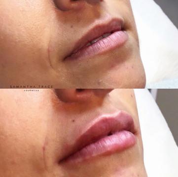 Lip filler 1.jpg