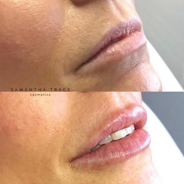 Lip filler 2.jpg