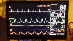 WEB EKG Monitor w_stand (DVD)