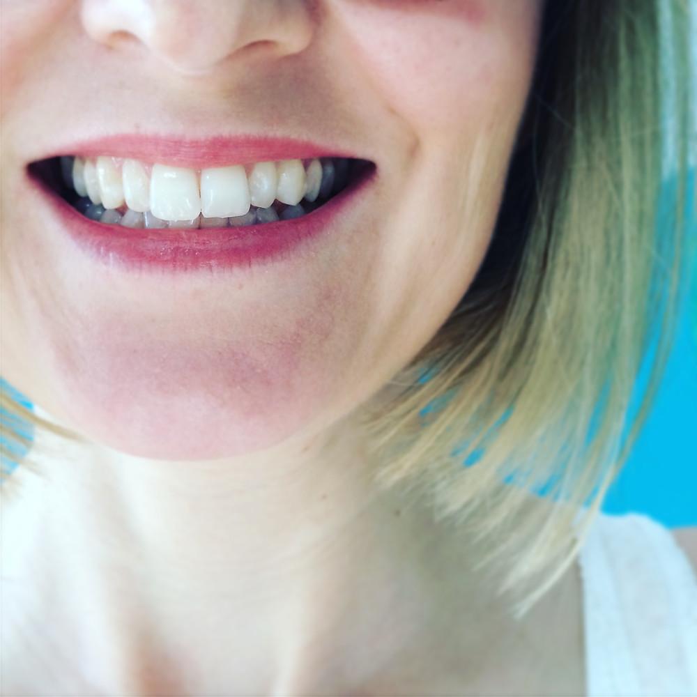 Oil pulling can help whiten teeth!