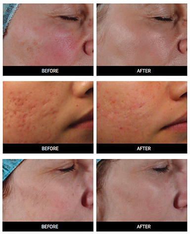 Before and After Fractional Laser Results | Swan Cosmetic Consulting