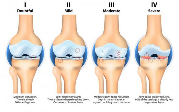 Osteoarthritis Image.png