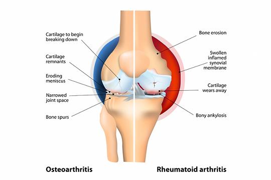 comparison-of-osteoarthritis-and-rheumat