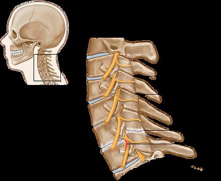 Spondylosis_opt.png
