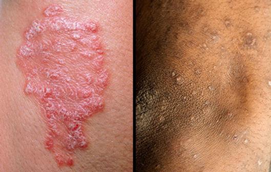sc-psoriasis2.jpg