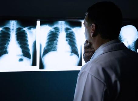 Mundo - A gripe e a pneumonia estão matando seis vezes mais pessoas do que o coronavírus.