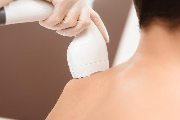 Neck & Shoulder Laser Hair Reduction