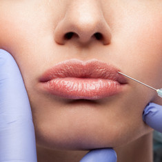 LIP ENHANCEMENTS | Lips Fillers