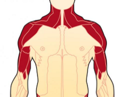 polymyositis.PNG