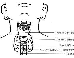 tracheostomy.PNG