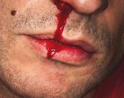 nosebleed.PNG