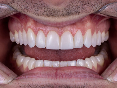 ¿Cómo eliminar manchas dentales?