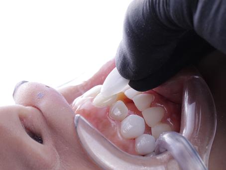¿El diseño de sonrisa sustituye la ortodoncia?