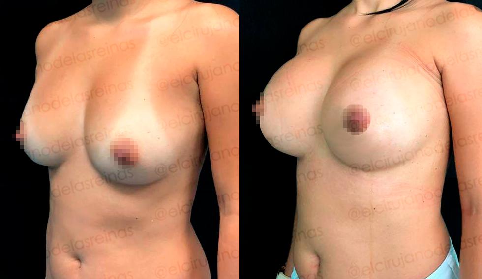 Mamoplastia