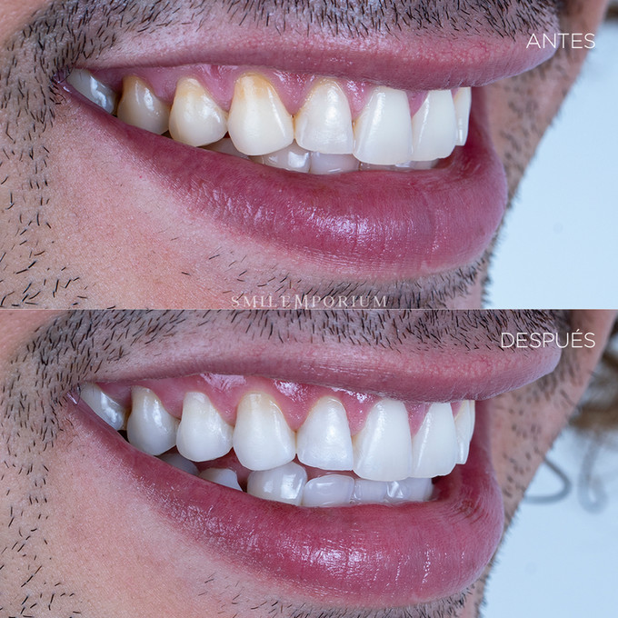 Blanqueamiento Dental Smilemporium