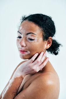 beautiful-woman-with-vitiligo-skin-G7H5TXV.jpg
