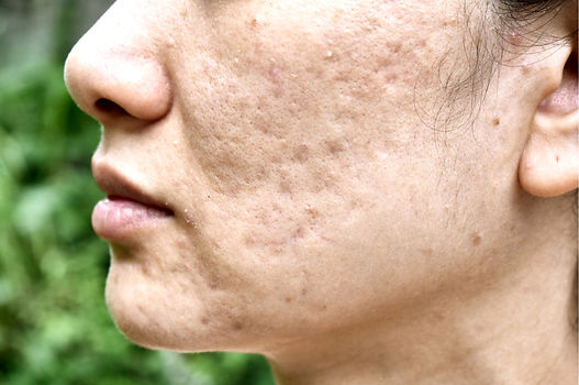Acne%20scarring2_edited.jpg