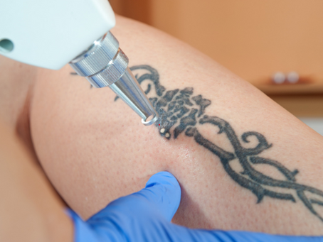Laser Tattoo Removal | Best Methods