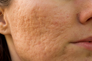 acne scarring.png
