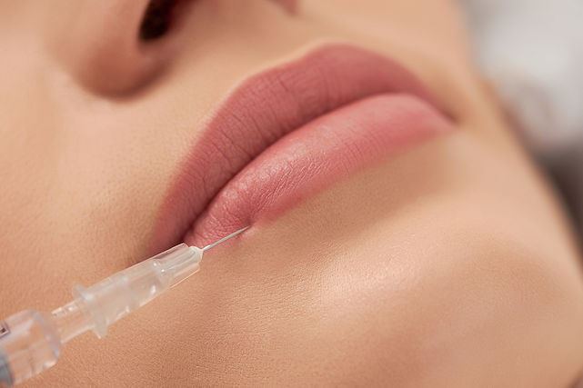 procedure-lip-augmentation-for-young-beautiful-wom-9T7X9RN.JPG