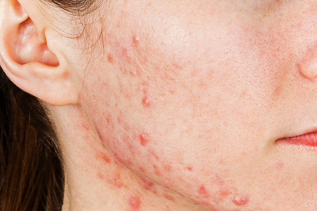 Acne+and+Acne+Scarring+Dermatology.jpg