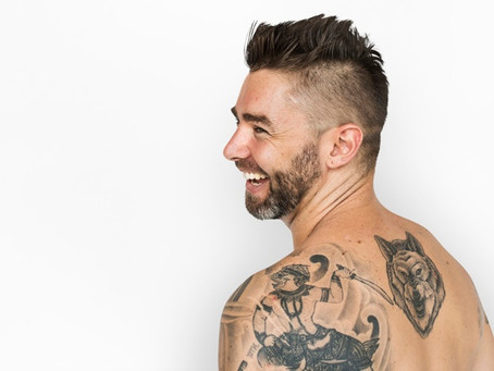 Laser Tattoo Removal | All Questions You Could Have