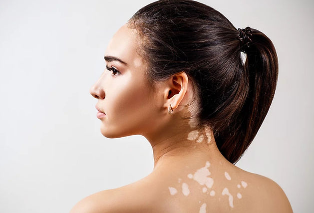 vitiligo-camouflage.jpg