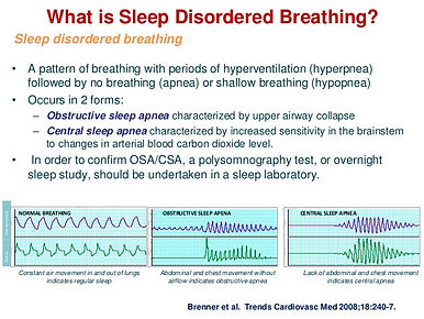 Sleep disorder breathing slide