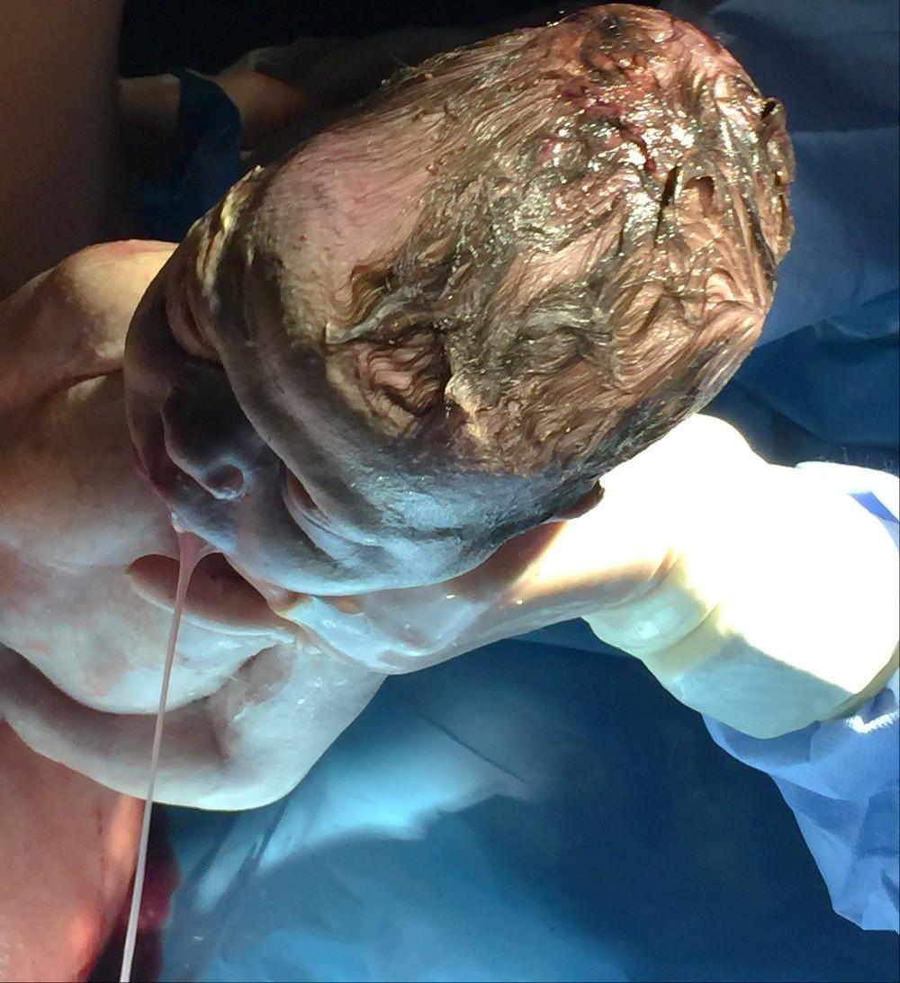 Fetal Heimlich Manuever | Intact Perineum | Episiotomy Free Birth