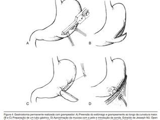 Gastrostomia à Depage-Janeway (Figura. 4)