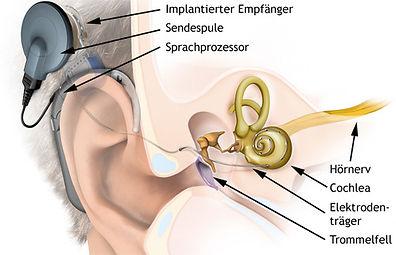 Cochlea1.jpg