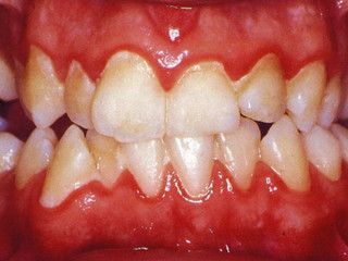 Bleeding Gums? Wobbly Tooth? Oh no sounds like Perio