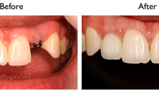 Dental Implants can complete your smile
