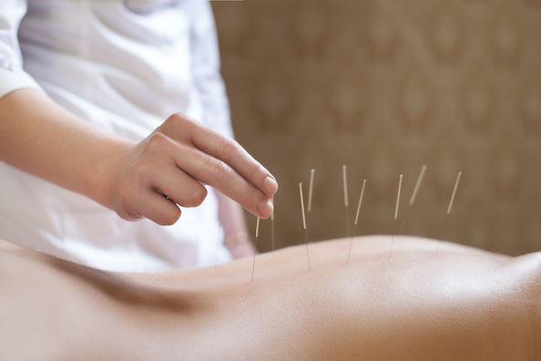Acupuncture - Initial