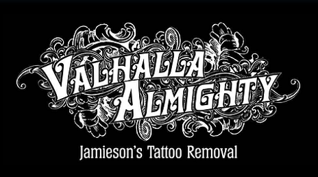 Manchester Tattoo Removal