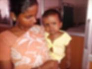 Sanchita, 1 year old, Open heart surgery