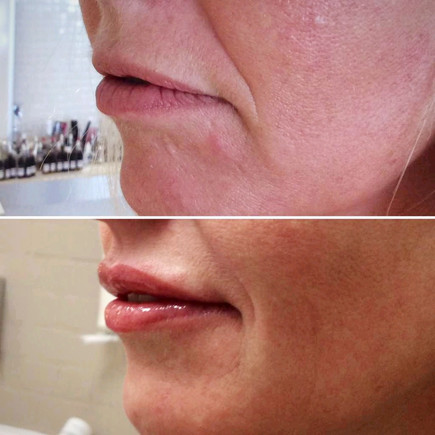 XTREME PLASMA BEFORE-AFTER