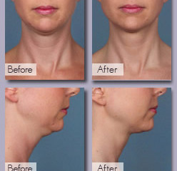 DITCH THAT DOUBLE CHIN!