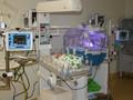 Новорожденных весом от 500 грамм успешно выхаживают в Акушерском стационаре №1 Перинатального центра