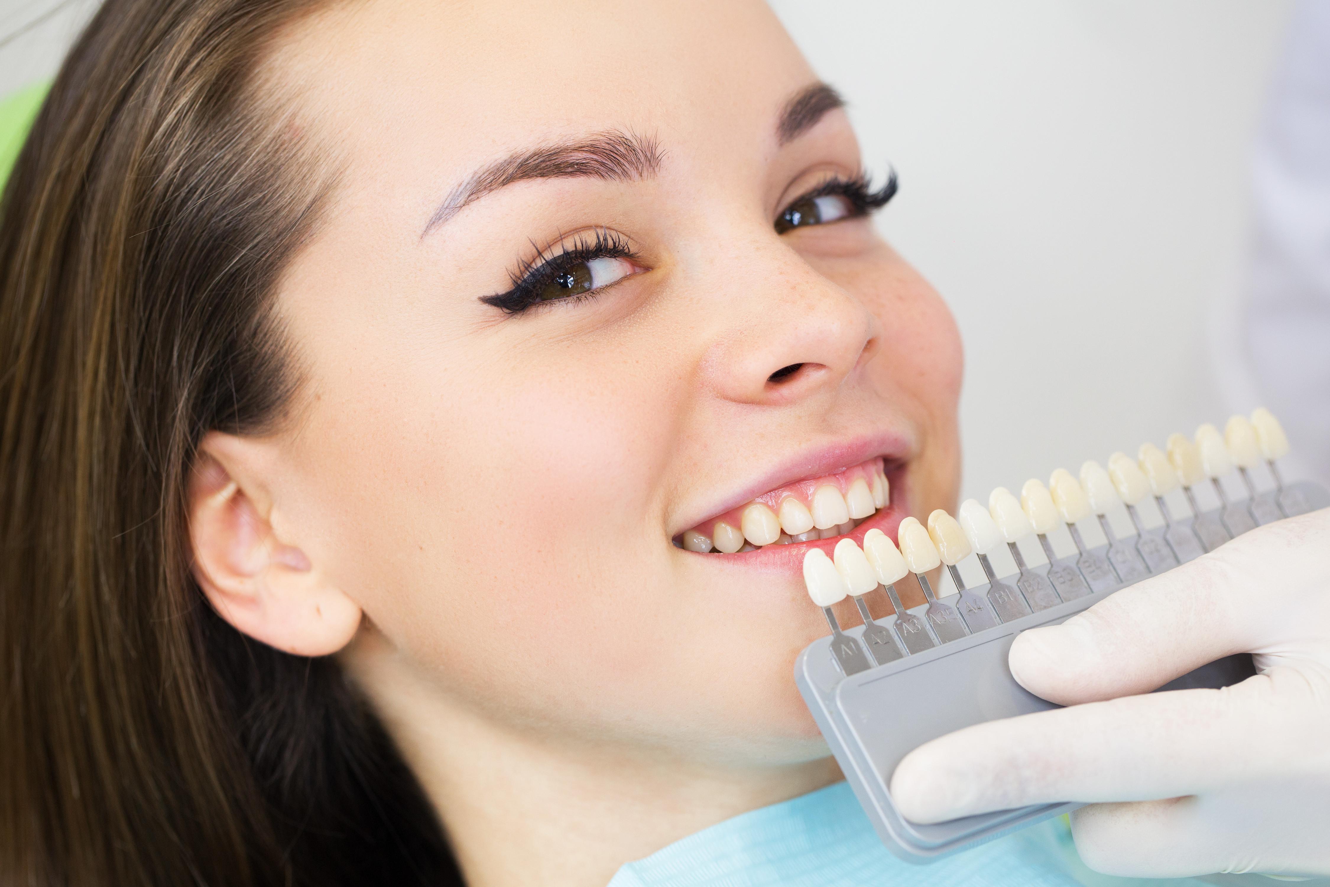 20 Min Teeth Whitening Session