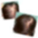 Microneedling Hair Loss