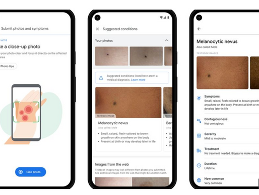 Google AI tech can help patients identify skin conditions