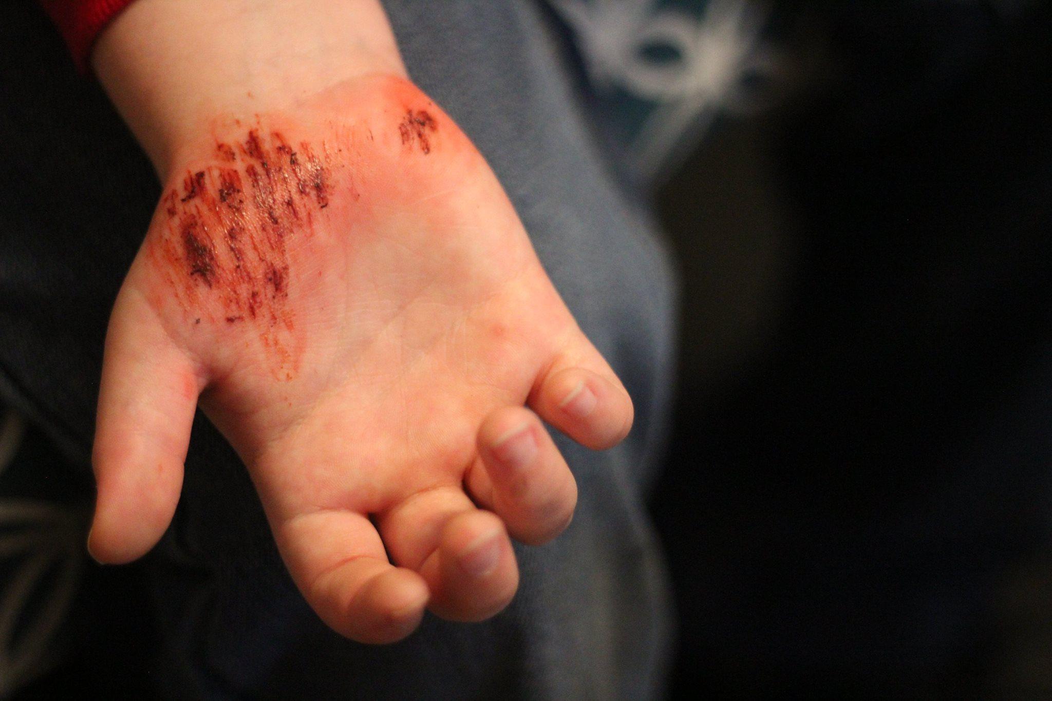 Scratch Wound