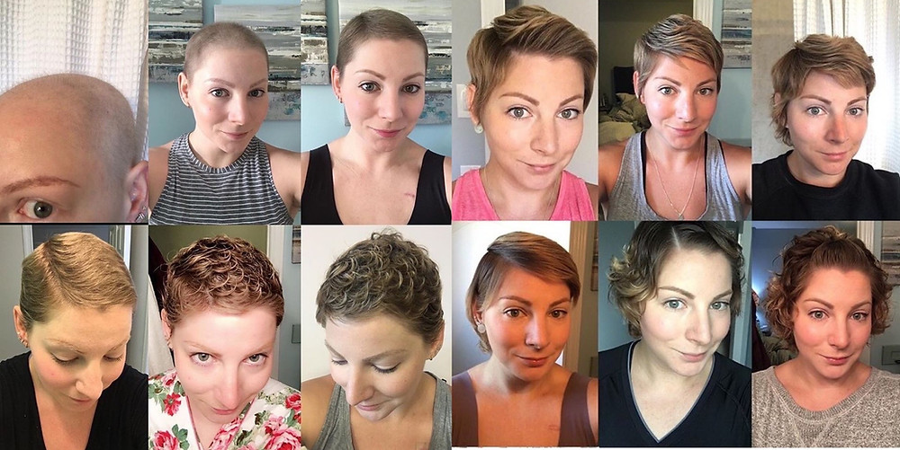 Montage of pictures showing Sarah's post chemo hair regrowth over a 12 month period.